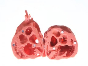 Augmenting Anatomy Education: Hearts in 3D